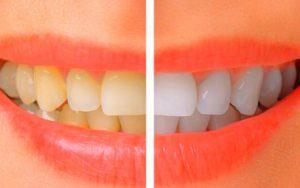 Cara Ampuh Menghilangkan Karang Gigi Secara Alami Blog Unik
