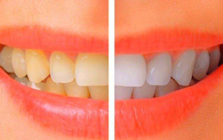 Cara Memutihkan Gigi Secara Alami Dan Aman Blog Unik