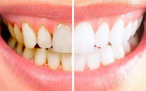 Cara ampuh menghilangkan karang gigi secara alami