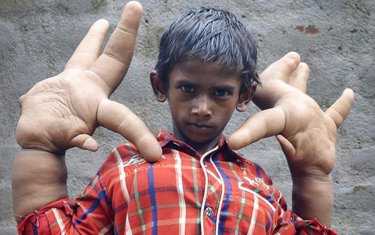 Deretan Manusia Terunik Di Dunia - Mohammad Kaleem