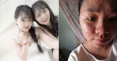 Transformasi Wanita Sebelum Dan Sesudah Menikah