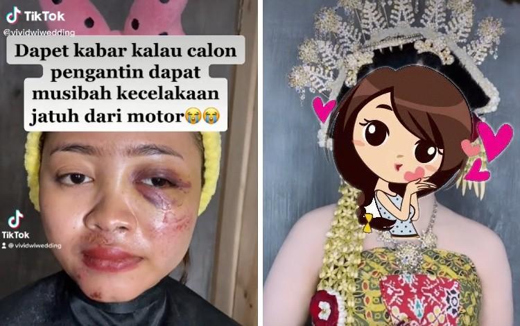 Aksi MUA Ubah Wajah Pengantin Kecelakaan Menjadi Cantik